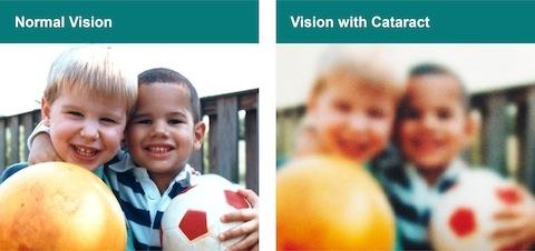Cataract Vision
