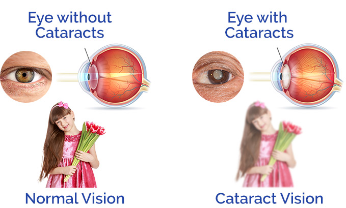 Eye Drops For Cataracts >> Cataract Surgeons Sydney - Chatswood Eye Surgeons.