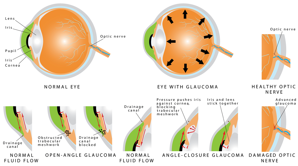 glaucoma specialist chatswood