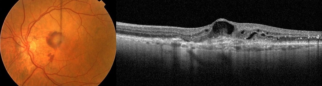 Choroidal Neovascular Membrane (CNVM or Wet MD)