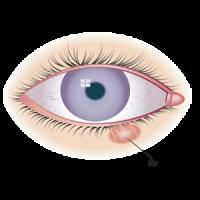 cyst eye style chalazion