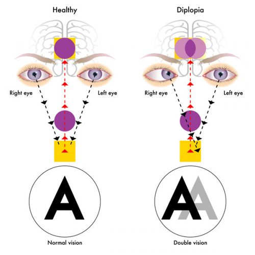 diplopia double vision specialist