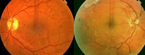 Diabetic-Eye-Disease-300x114