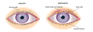 eye-blepharitis-treatment